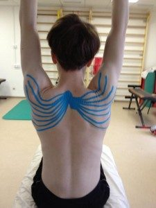 Photo of a woman with Kinesio Tape on her back trimmed in a spider pattern.